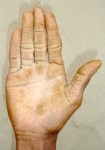 Arsenic Infected hand